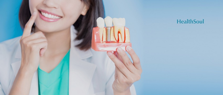 Photo of Who can do Dental Implant? | Prosthodontics | HealthSoul