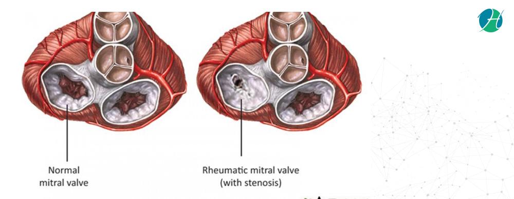 Rheumatic Diseases – Causes, Symptoms, Diagnosis, Treatment