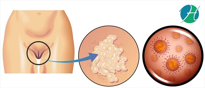Vulvar cancer: overview, symptoms, causes, diagnosis and management