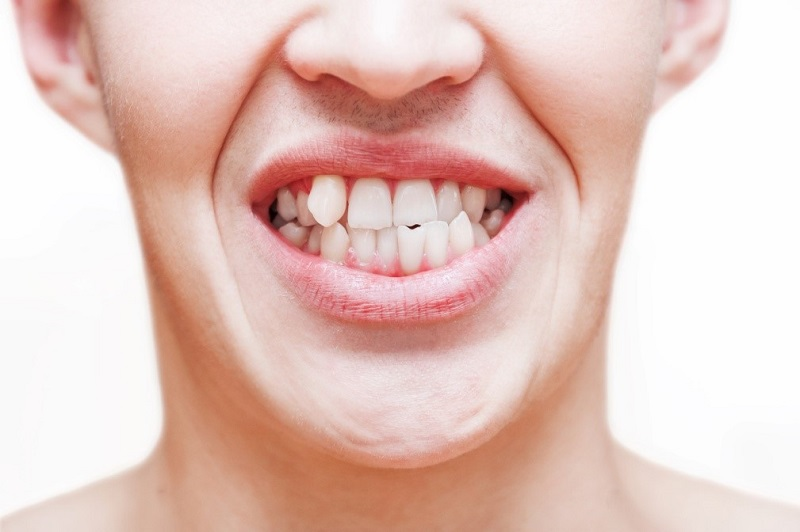 8 Negative Effects of Crooked Teeth on Oral and Overall Health