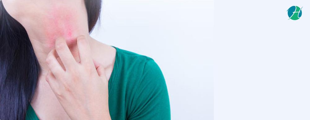 Eczema banner