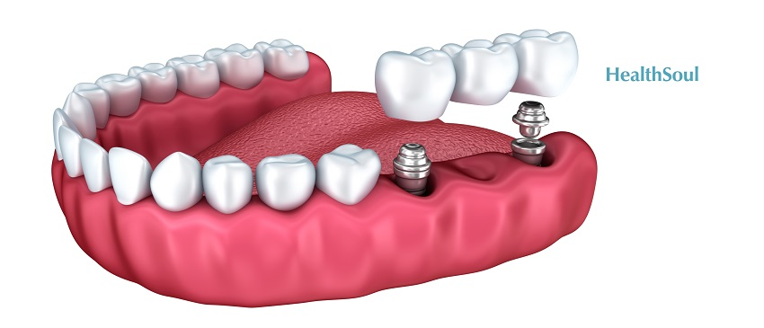Dental Implant Costs and Why They're Worth the Money