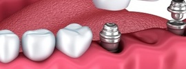 Small thumb dental implant costs and why they re worth the money
