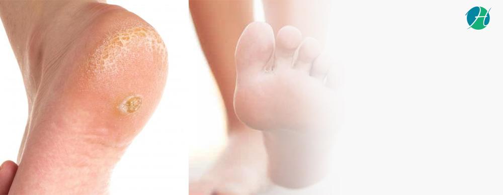 Warts Healthcare Blog Healthsoul