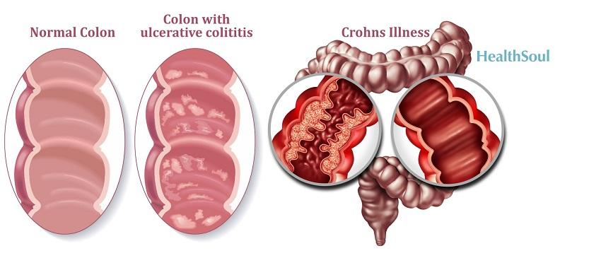 Inflammatory bowel disease   banner