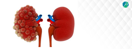 Polycystic Kidney Disease: Symptoms, Diagnosis, and Treatment