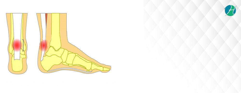 Achilles tendonitis banner revised