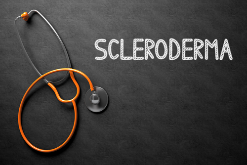 Scleroderma: Symptoms, Diagnosis and Treatment