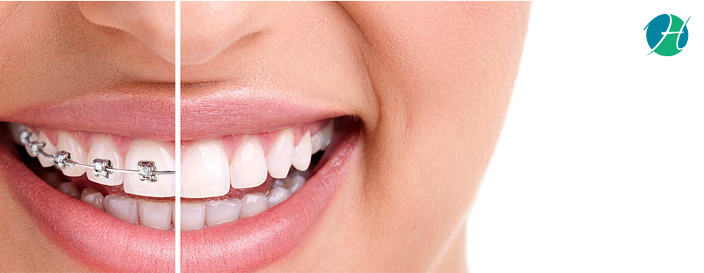 Dental braces amit banner