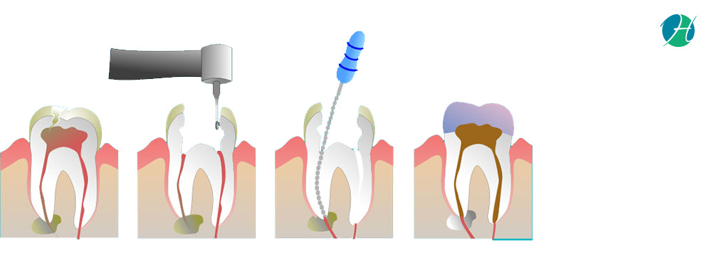 Root canal amit banner