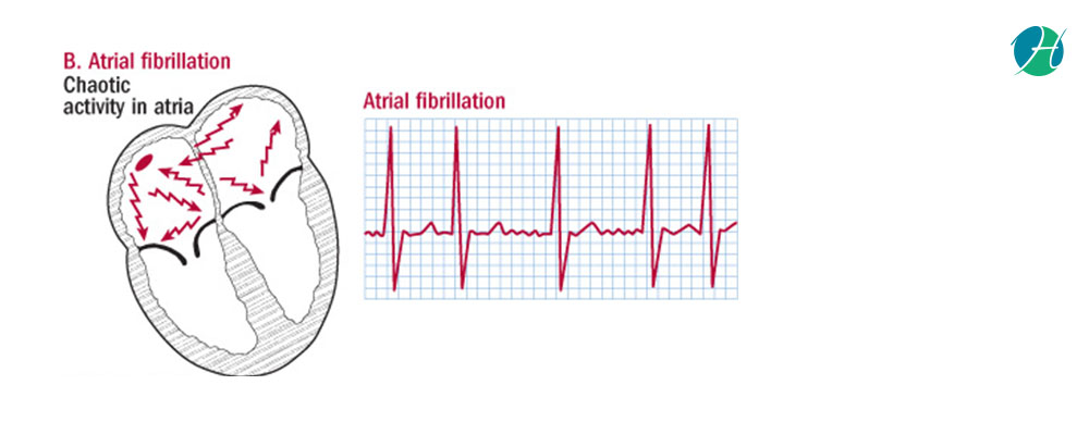Atrial fibrillation banner