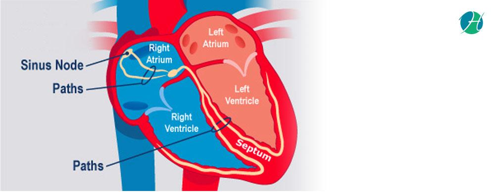 Supraventricular tachycardia banner revised
