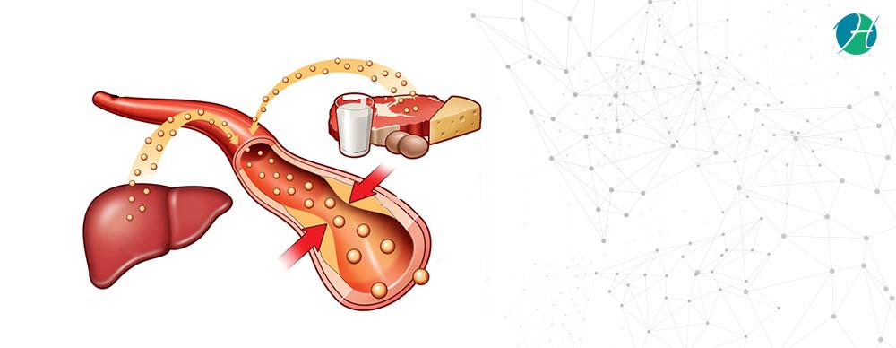 Hyperlipidemia banner