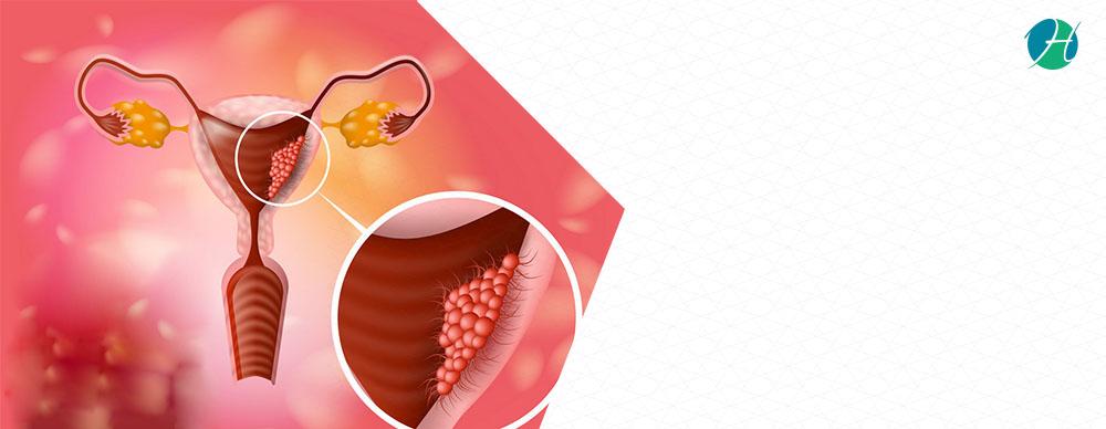 Pap smear banner
