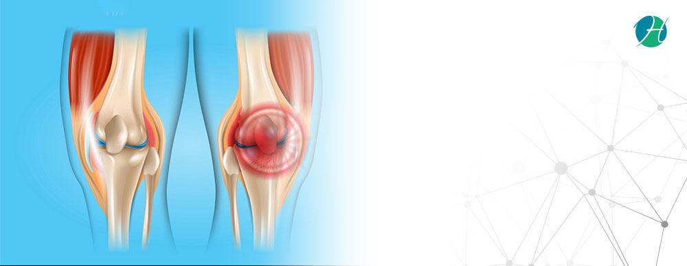 Torn meniscus banner