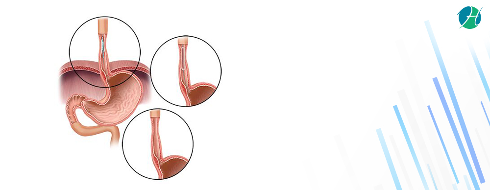 Esophageal dilatation banner revised