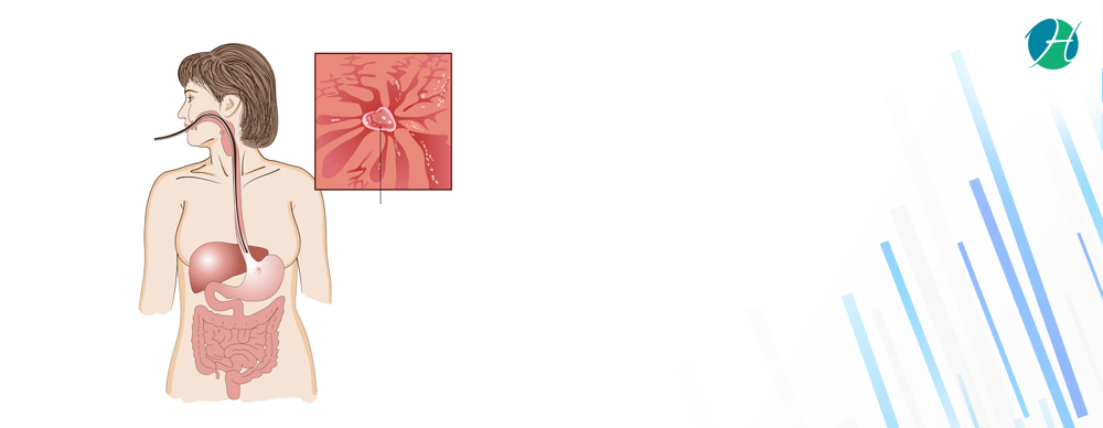 Upper gi endoscopy banner revised