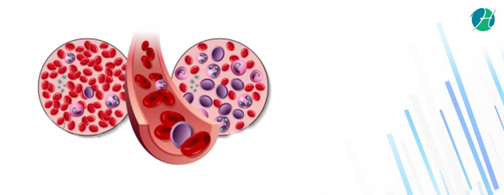 Leukemia aml banner revised 2nd