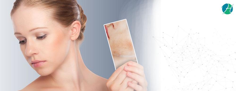 Lupus: Symptoms, Diagnosis and Treatment