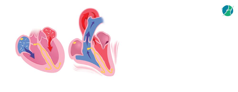 Arrhythmias: Causes and Treatment