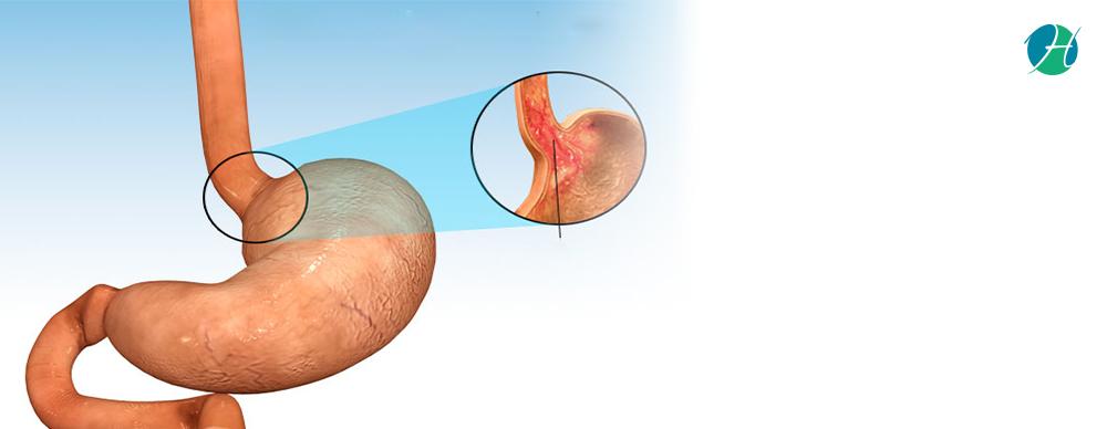Barrett s esophagus   causes  symptoms  diagnosis  treatment 09 05 18 clean banner