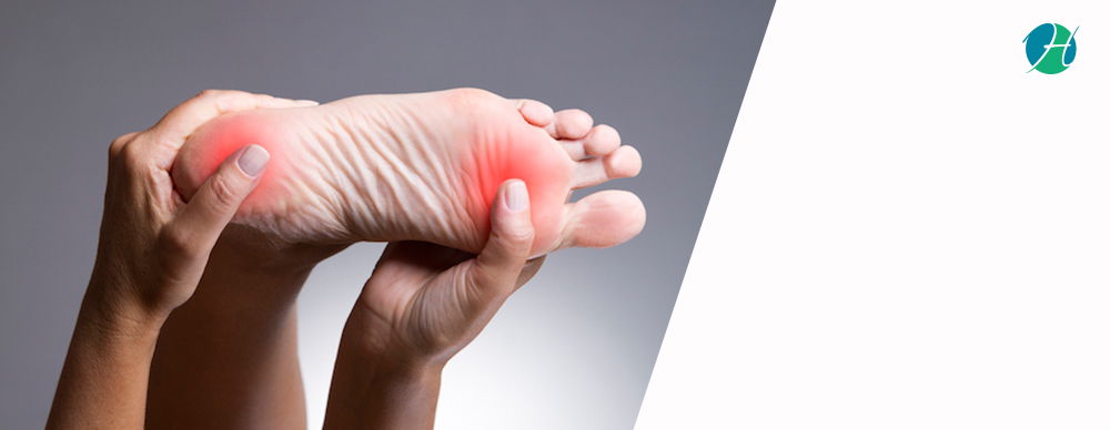 Calluses: Causes and Treatment