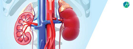 Chronic Kidney Disease: Causes and Management