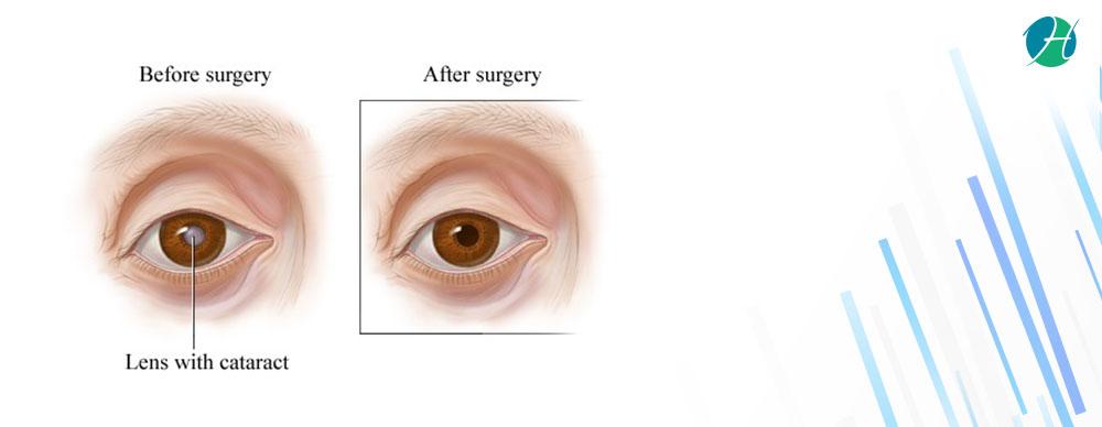 Cataract surgery banner