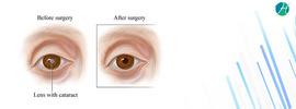 Small thumb cataract surgery banner