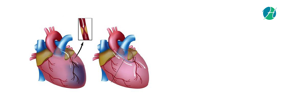 Coronary artery bypass grafting banner