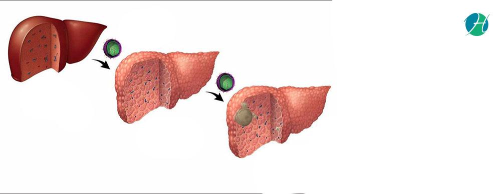 Hepatitis c banner