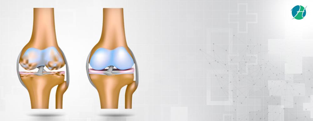 Osteoarthritis: Symptoms, Diagnosis and Treatment