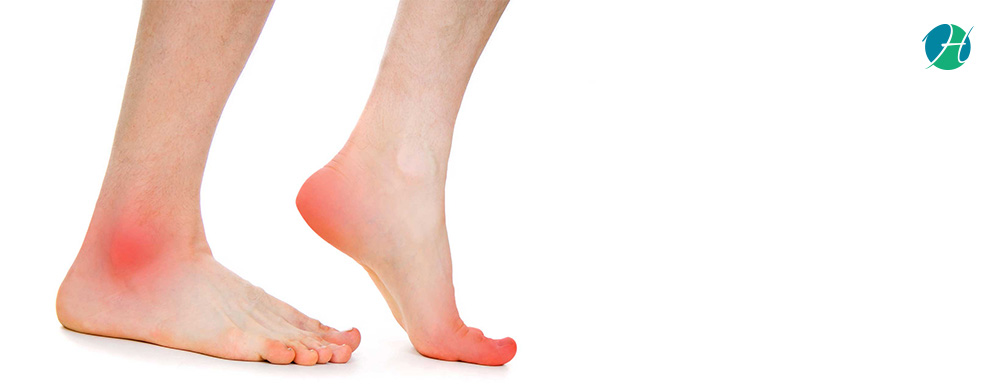 Heel and Foot Pain: Causes and Treatment