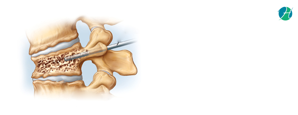 Kyphoplasty: Indications and Complications