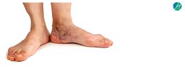 Chronic Venous Insufficiency: Symptoms and Treatment