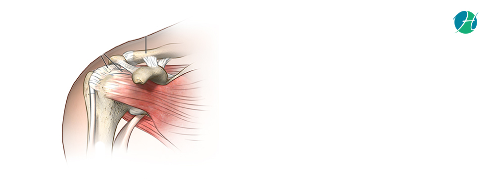 Rotator Cuff Repair: Indications and Complications