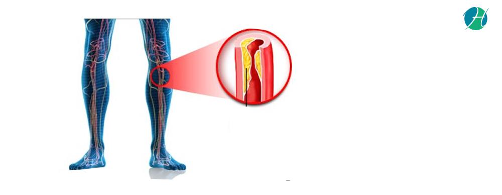 Claudication   causes  symptoms  diagnosis  treatment 10 03 18 clean banner