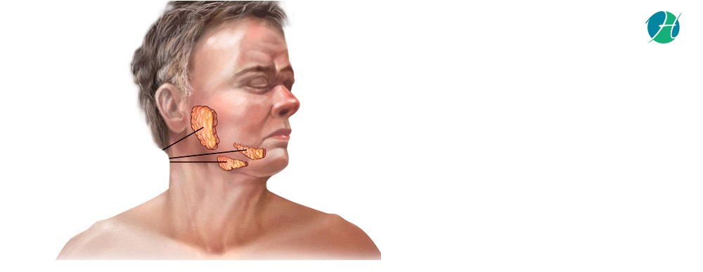 Mumps: Symptoms and Treatment | Infectious Disease ...