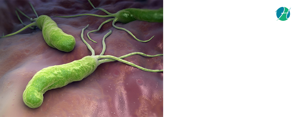 H. pylori infection  symptoms and treatment 4