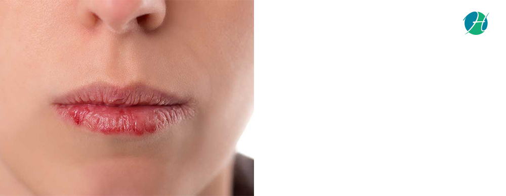 Lip cancercauses  and treatment 3