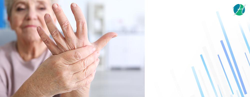 Rheumatoid arthritis banner revised