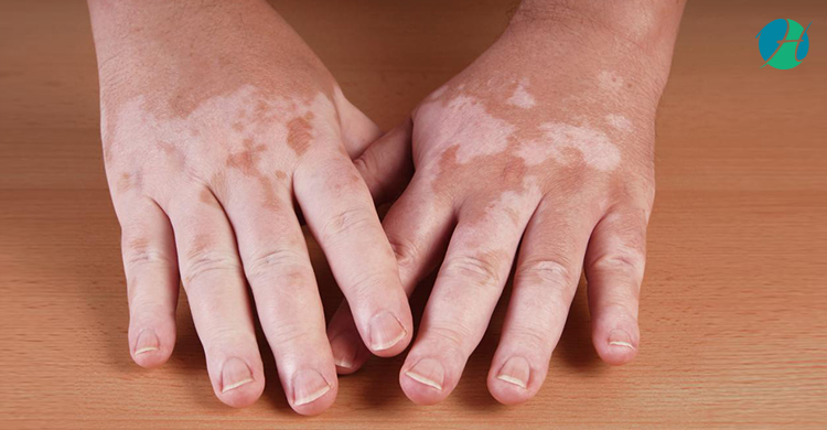 Hypopigmentation: Cause and Symptoms