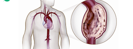 Small thumb thoracic aortic aneurysm banner