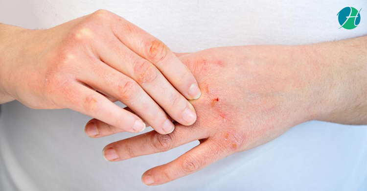 Dietary Recommendations for Psoriasis