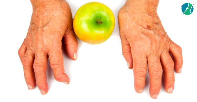 Dietary recommendations for rheumatoid arthritis banner