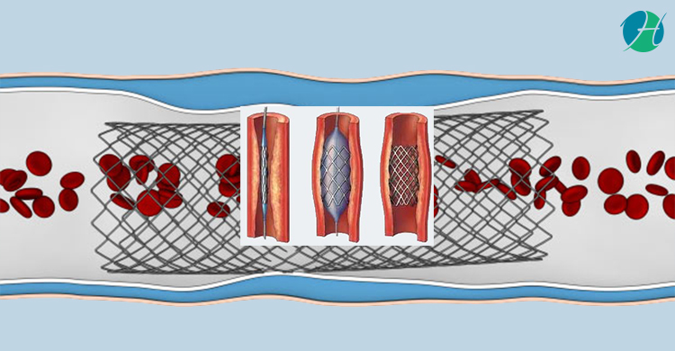 Coronary angioplasty and stent 2