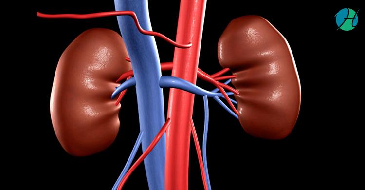 Kidney transplant 2