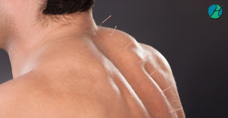 How Massage Can Help Chronic Myofascial Pain Syndrome (CMPS)