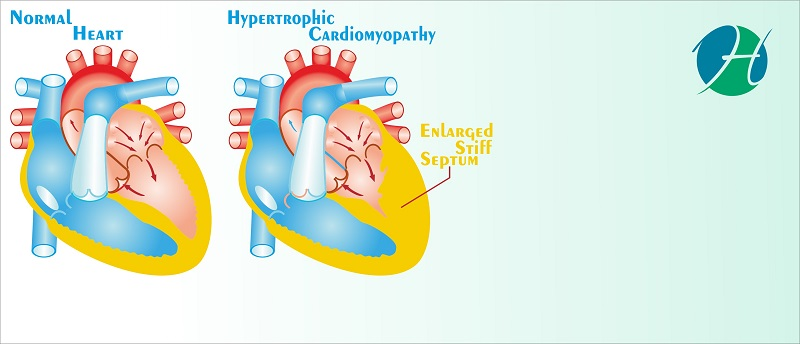 Septal myectomy and septal ablation for hypertrophic cardiomyopathy   banner