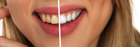 Common Procedures of Cosmetic Dentists in Melbourne